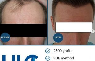 hair-transplant-in-ankara