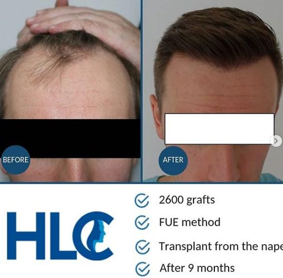 HLC-2600 GRAFTS FUE