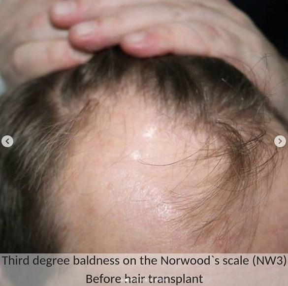 hair transplant in ankara (3)