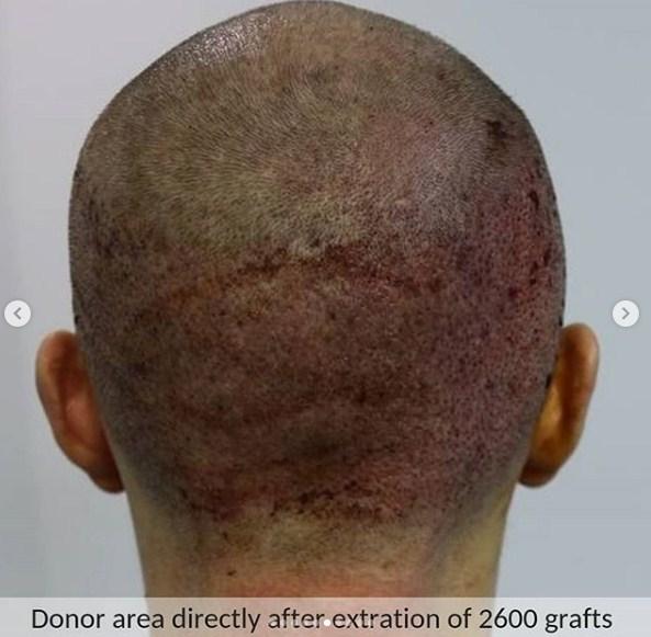 hair transplant in ankara (7)