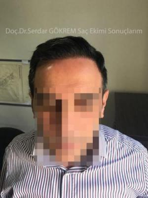 hair transplant in turkey by doctor (1)