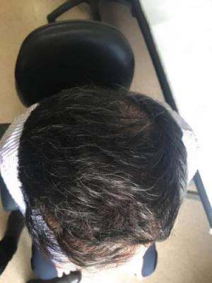 hair transplant in turkey by doctor (2)