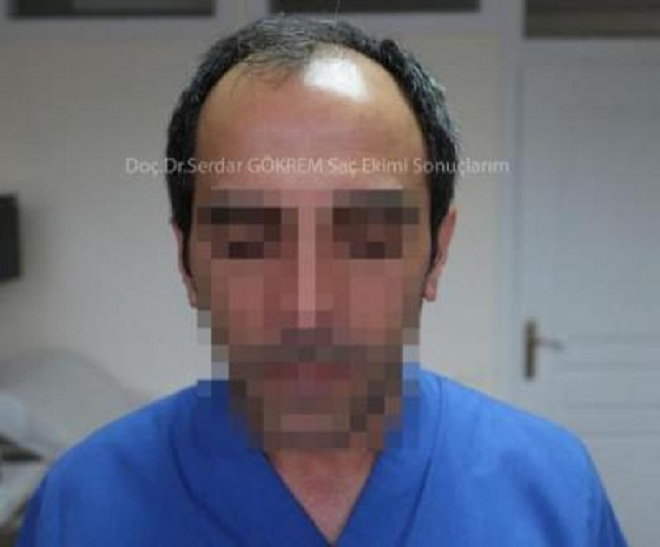 hair transplant in turkey by doctor (3)