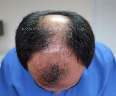 hair transplant in turkey by doctor (4)