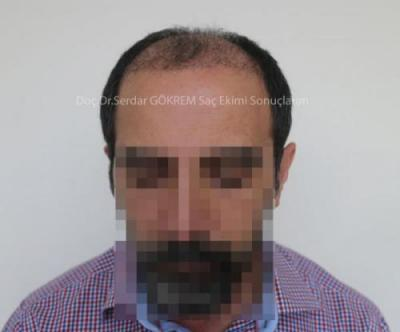 hair transplant in turkey by doctor (5)