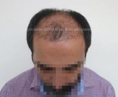 hair transplant in turkey by doctor (6)