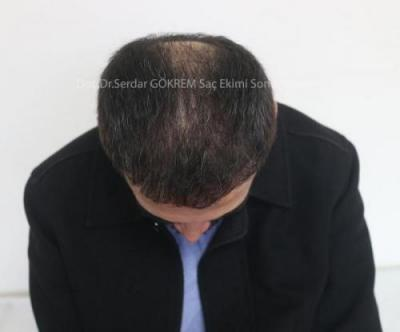 hair transplant in turkey by doctor (8)