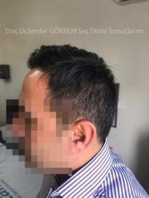 hair transplant in turkey by doctor (9)