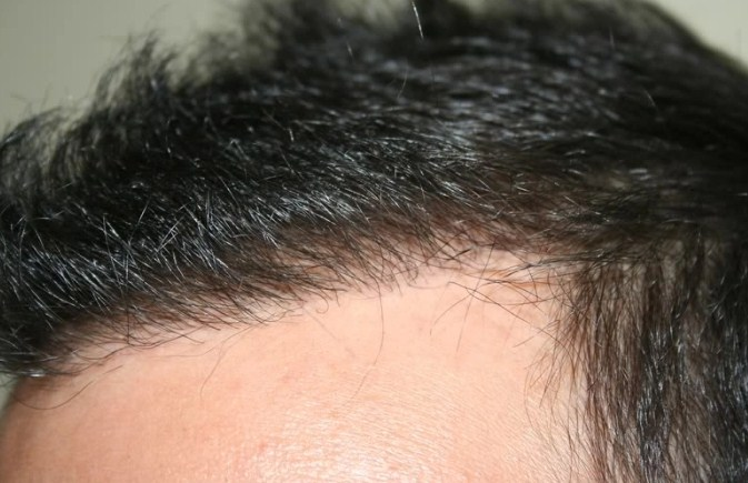 hair transplant in turkey forum (1)