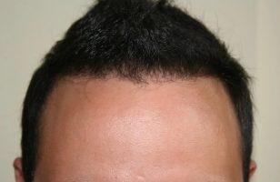 hair transplant in turkey forum (10)
