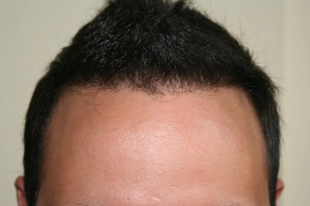 hair transplant in turkey forum (10)