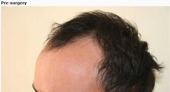 hair transplant in turkey forum (11)