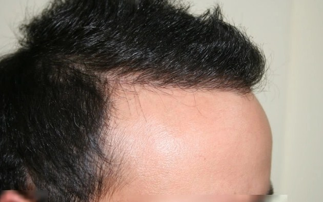 hair transplant in turkey forum (13)