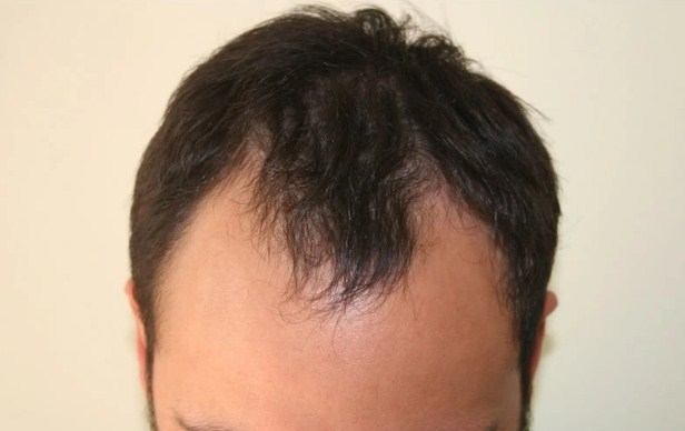 hair transplant in turkey forum (2)