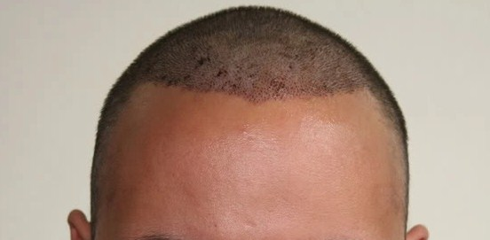 hair transplant in turkey forum (4)