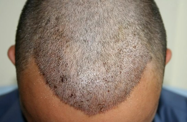 hair transplant in turkey forum (6)