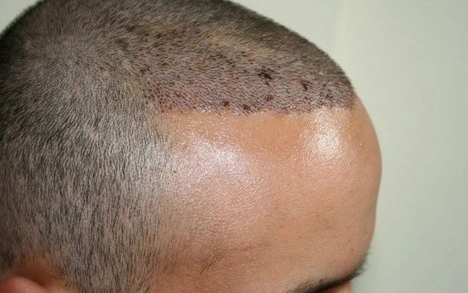 hair transplant in turkey forum (8)