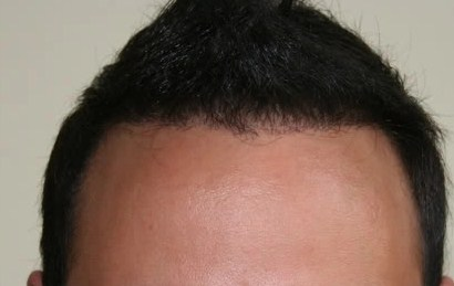 hair transplant in turkey forum (9)