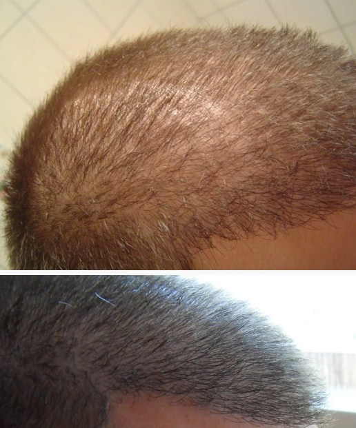 hair transplant in turkey package (7)