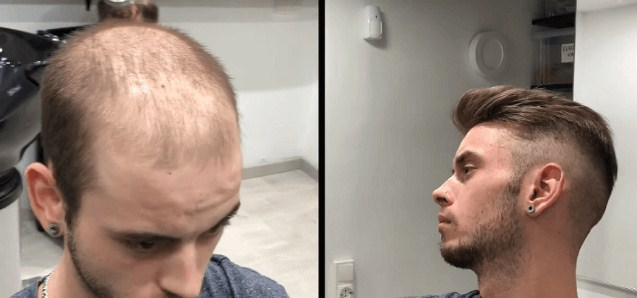 hair transplant money