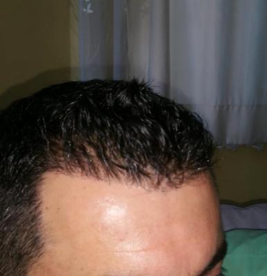 hair transplant reviews (1)