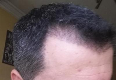 hair transplant reviews (10)