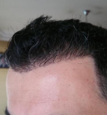 hair transplant reviews (11)
