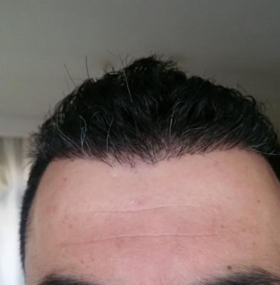 hair transplant reviews (12)