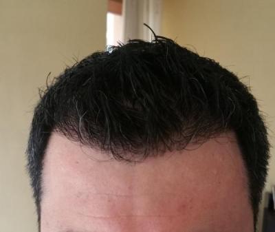 hair transplant reviews (2)