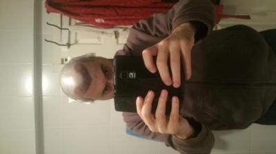 hair transplant reviews (4)