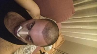 hair transplant reviews (6)