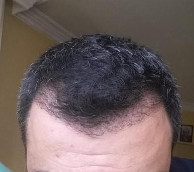 hair transplant reviews (7)