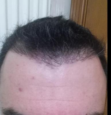 hair transplant reviews (9)