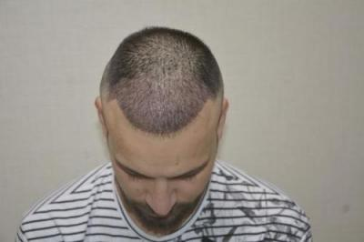 hair transplant turkey antalya (9)