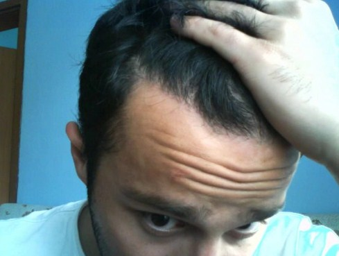 hair transplant turkey before after (11)