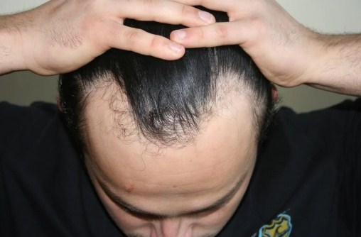 hair transplant turkey before after (3)