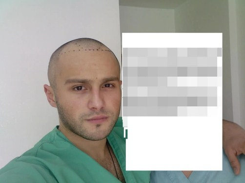 hair transplant turkey before after (4)