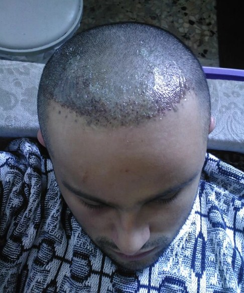 hair transplant turkey before after (8)