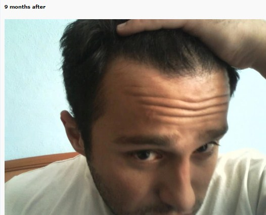 hair transplant turkey before after (9)