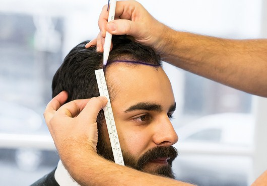 HOW IS HAIR TRANSPLANTATION IN TURKEY?