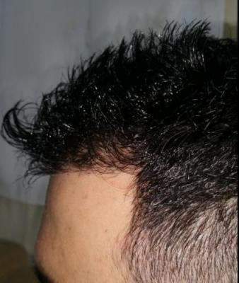 is hair transplant difficult (1)