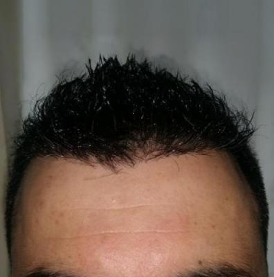 is hair transplant difficult (10)
