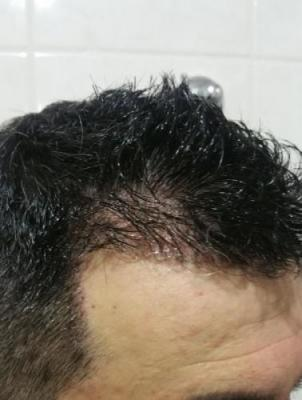 is hair transplant difficult (2)