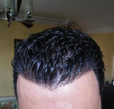 is hair transplant difficult (3)