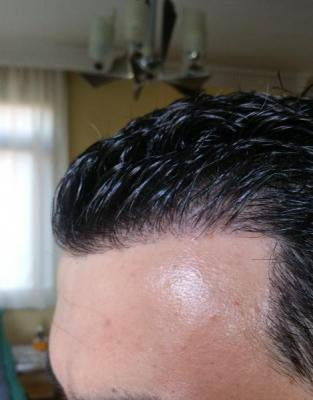 is hair transplant difficult (4)