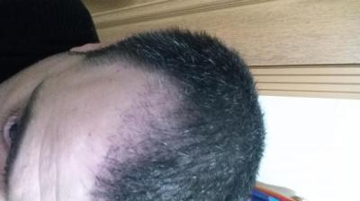is hair transplant difficult (6)