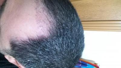 is hair transplant difficult (7)