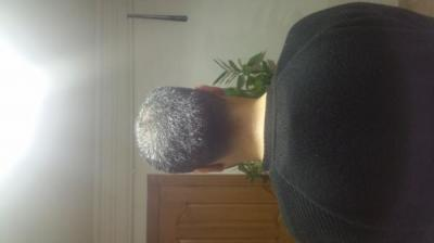 is hair transplant difficult (8)