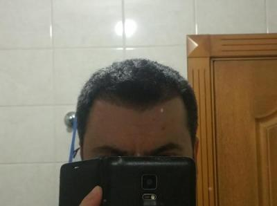 is hair transplant difficult (9)