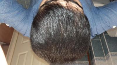 Hair-implants-turkey (23)